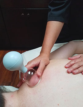 Picture of Massage Therapist administering Cupping Massage to Client